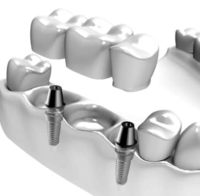 Tre tenner på implantat for overkjeve og underkjeve