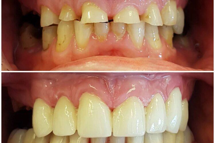 Tannslitasje - tannlege og tannbehandling