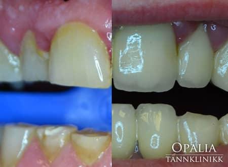 Tannbehandling tannslitasje tannkroner