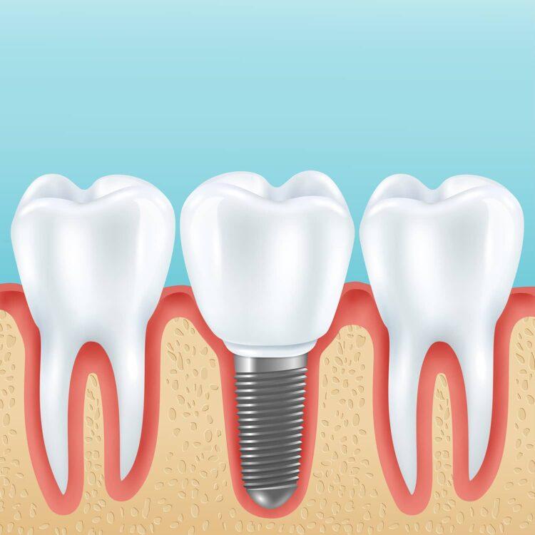 Illustrasjon tannimplantat ved siden av tenner