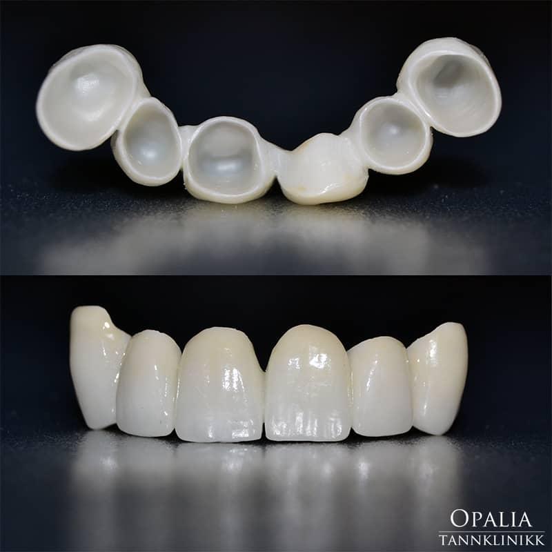 Metallfri tannbro hos Opalia tannklinikk
